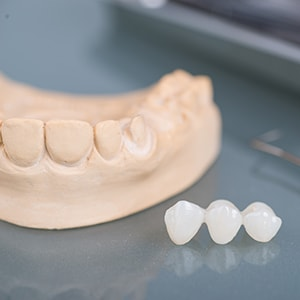 A dental bridge which we offer as part of our restorative and cosmetic dentistry in Waldorf. MD