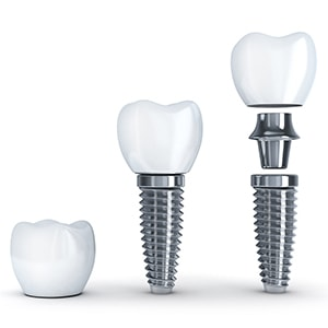 The parts of a dental implant which is offered as part of our restorative and cosmetic dentistry services in Waldorf, MD