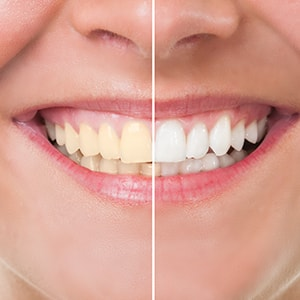 A before and after of someone using teeth whitening which is offered as part of our cosmetic dentistry in Waldorf. MD