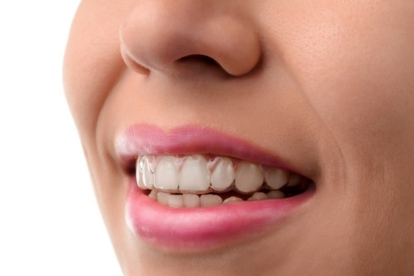 Image of smile with Invisalign clear aligners