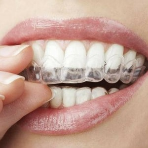 Close up of a clear aligner provided by your Waldorf dentist as part of our specialty services