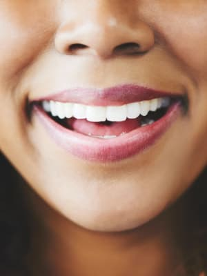 A woman's smile with bright, white teeth!