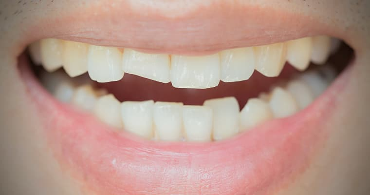 Smile of a patient with a chipped tooth